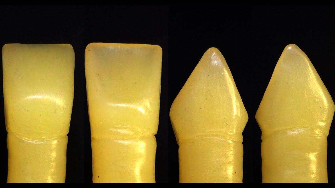central incisor - Vatoz.atozdevelopment.co