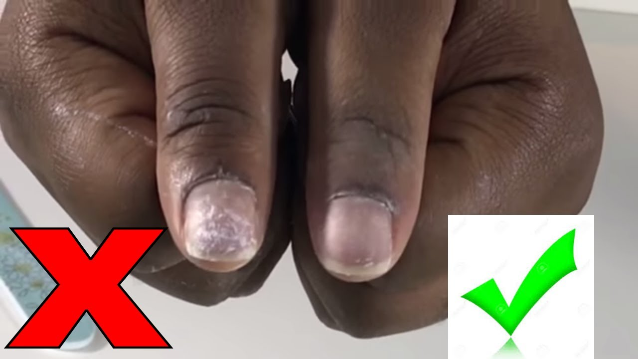 Diy How To Safely Remove Acrylic Fake Nails At Home