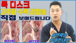 [시술의신] 목디스크 시술, 경추 고주파 수핵감압술 완…
