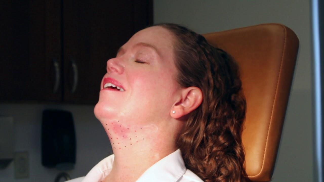 KYBELLA | Appalachian Spring Dermatology