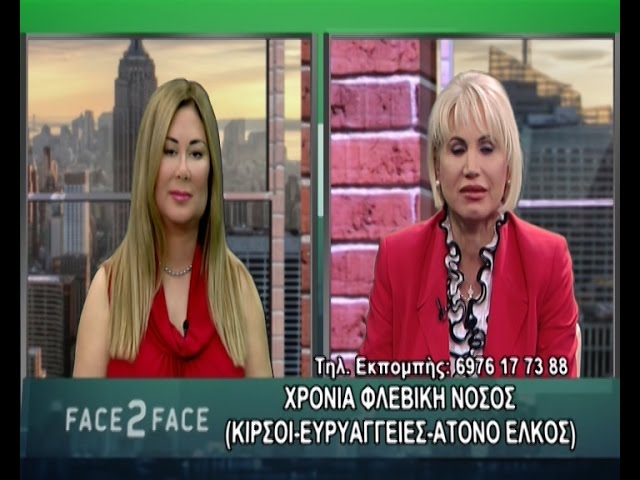 FACE TO FACE TV SHOW 261