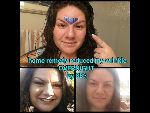 HOW-TO overnight get rid of wrinkle between eyes