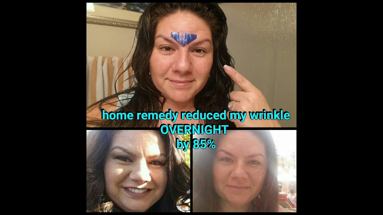 How To Overnight Get Rid Of Wrinkle Between Eyes Youtube