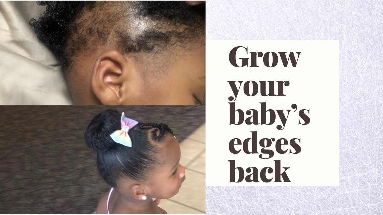 How To | Grow Your Baby's Hair Back