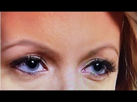 "STORMY DANIELS' ""SUPER"" DILATED PUPILS SPARK ACCUSATIONS!"