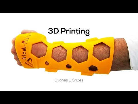 3D Printing  - Casts, Ovaries, & Shoes - 3D Nuggets