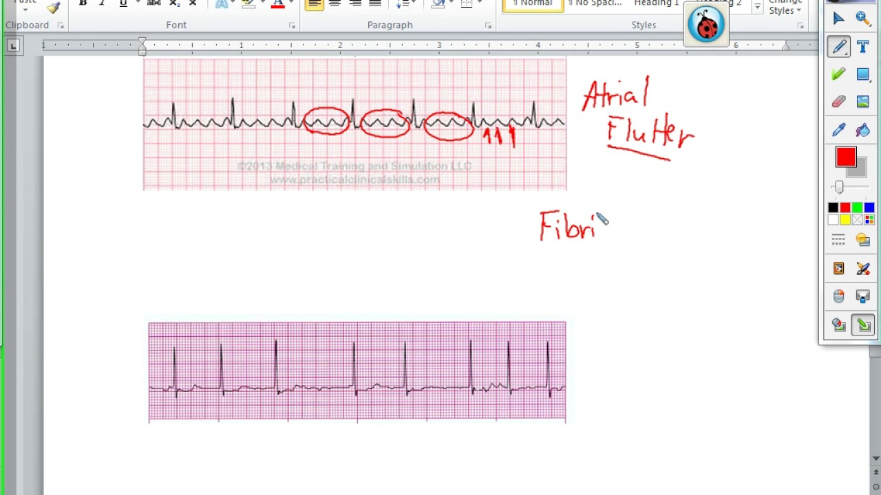 EKG - normal and abnormal