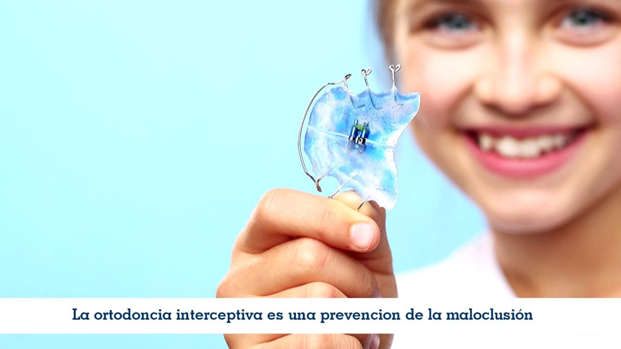 que es ortodoncia interceptiva