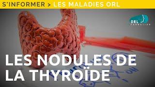 NODULE THYROIDIEN - Information patient