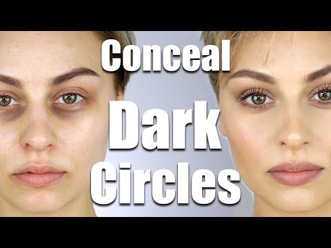 How To Conceal Dark Circles Under Eyes | Alexandra Anele