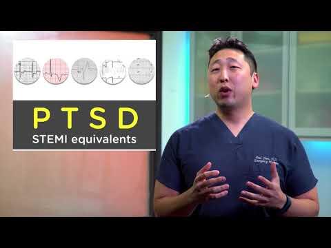 STEMI Equivalents for ECGs