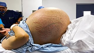 24-year-old-s-stomach-won-t-stop-growing-then-a-scan-reveals-the-70-pound-monster-hidden-inside