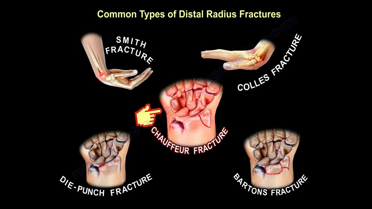 Radius. Description. Some types of fractures