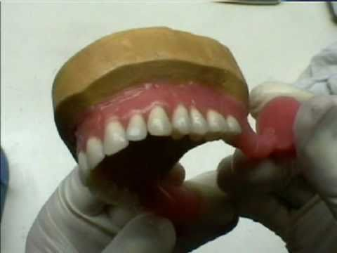 Протезирование зубов без обточки по низким ценам в Москве