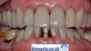 Treatment of Periodontal (Gum) Disease before Aesthetic Dentistry. Kuljeet Mehta-Periodontist