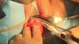 Hysterectomie Vaginale Dr CRISCUOLO jean louis