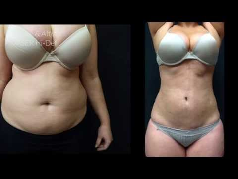 VASER Liposuction performed by Dr Bassi of PHI Clinic in London