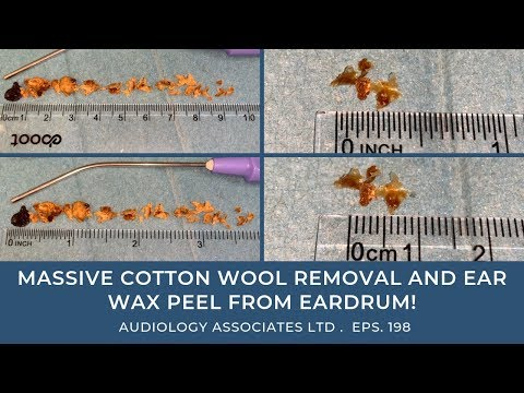 MASSIVE COTTON WOOL REMOVAL AND EAR WAX PEEL FROM EARDRUM - EP 198