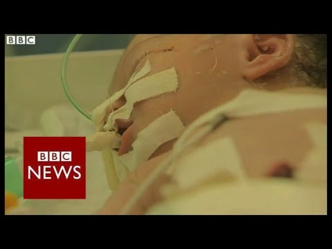 Gaza baby delivered from dead mother - BBC News