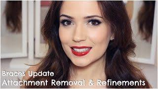 Invisalign | Attachments Removal & Refinements