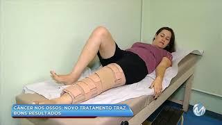 Pernas de de mama dor metástase nas e câncer