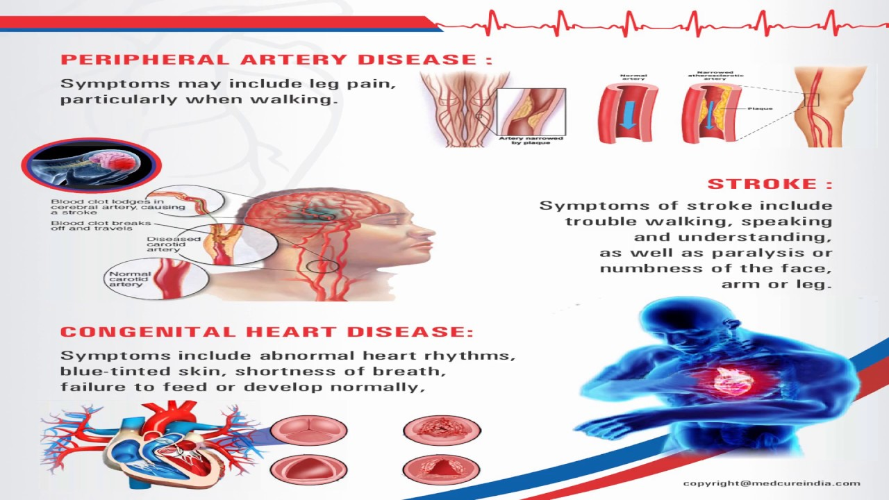 Find a Cardiologist Near You | Best Heart Doctors #cardiology