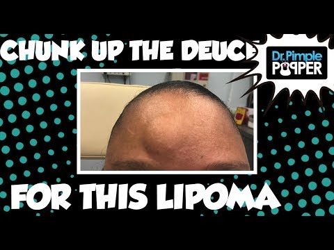 Chunk (Or Chock) Up The Deuce For This Lipoma ✌🏼