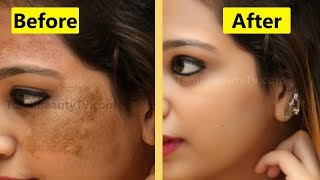 How to Remove Skin pigmentation from face? - Beauty Tips in Tamil