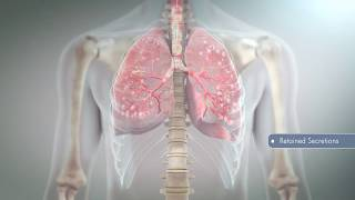 Hill-Rom | Respiratory Care | Airway Clearance Anatomy & Physiology