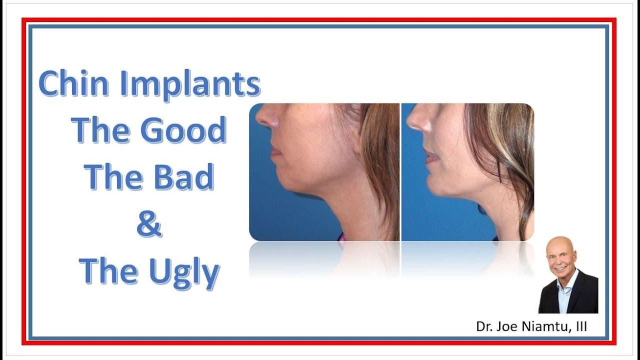 Chin Surgery Richmond VA | Chin Plastic Surgery | Chin Implant