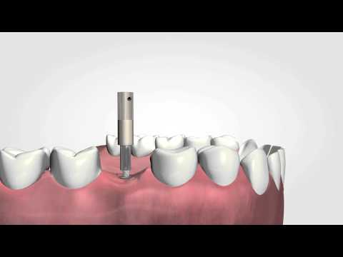 Osstell ISQ   the only objective way to measure implant stability HD