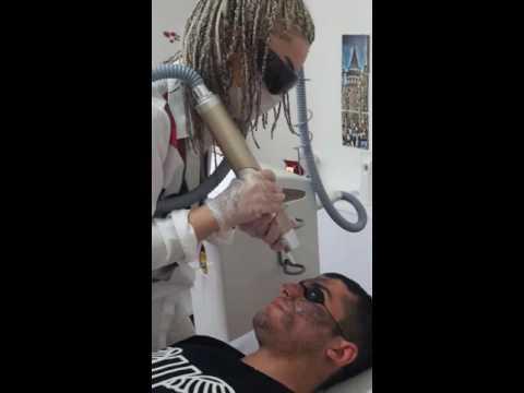 Karbon Peeling  (Yalova Hülyaca Klinik 0 226 814 55 40 )