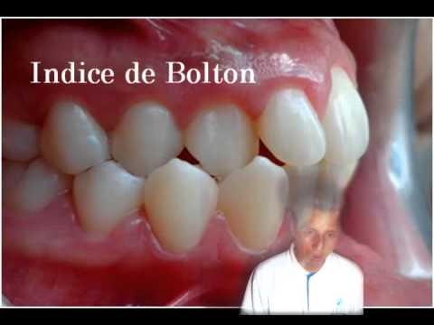 analisis de modelos en ortodoncia
