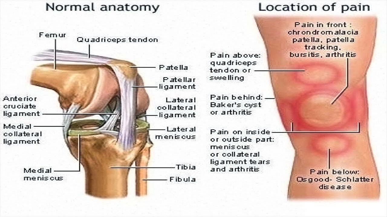 How To Relieve Knee Pain Quickly. - YouTube
