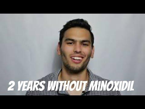 2-year-beard-without-minoxidil---was-it-worth-it?