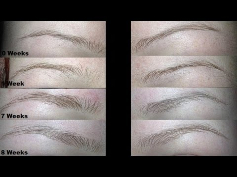 How To Quickly Grow Out Skinny Brows Youtube