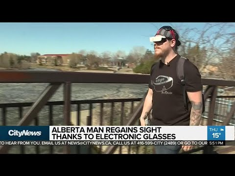 Alberta man regains sight thanks to electronic glasses