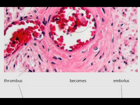 MedDef29: Thrombus vs Embolus - YouTube