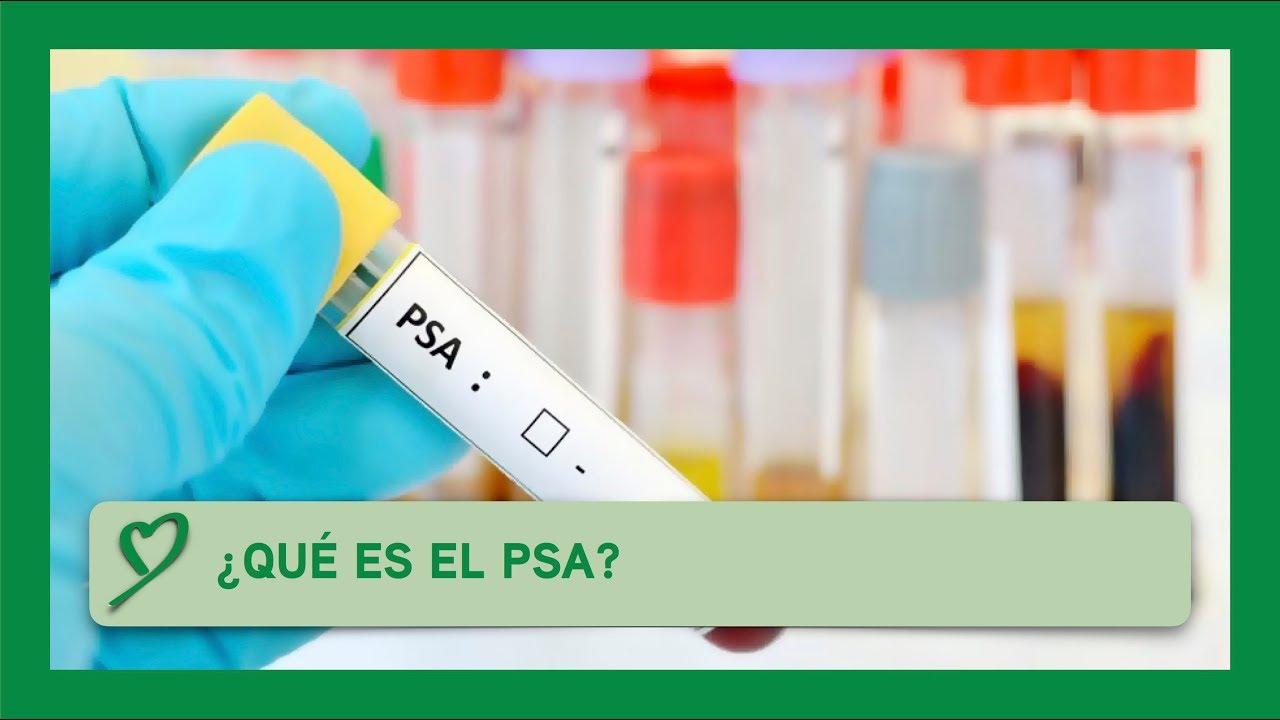 anígeno específico de próstata libre libres
