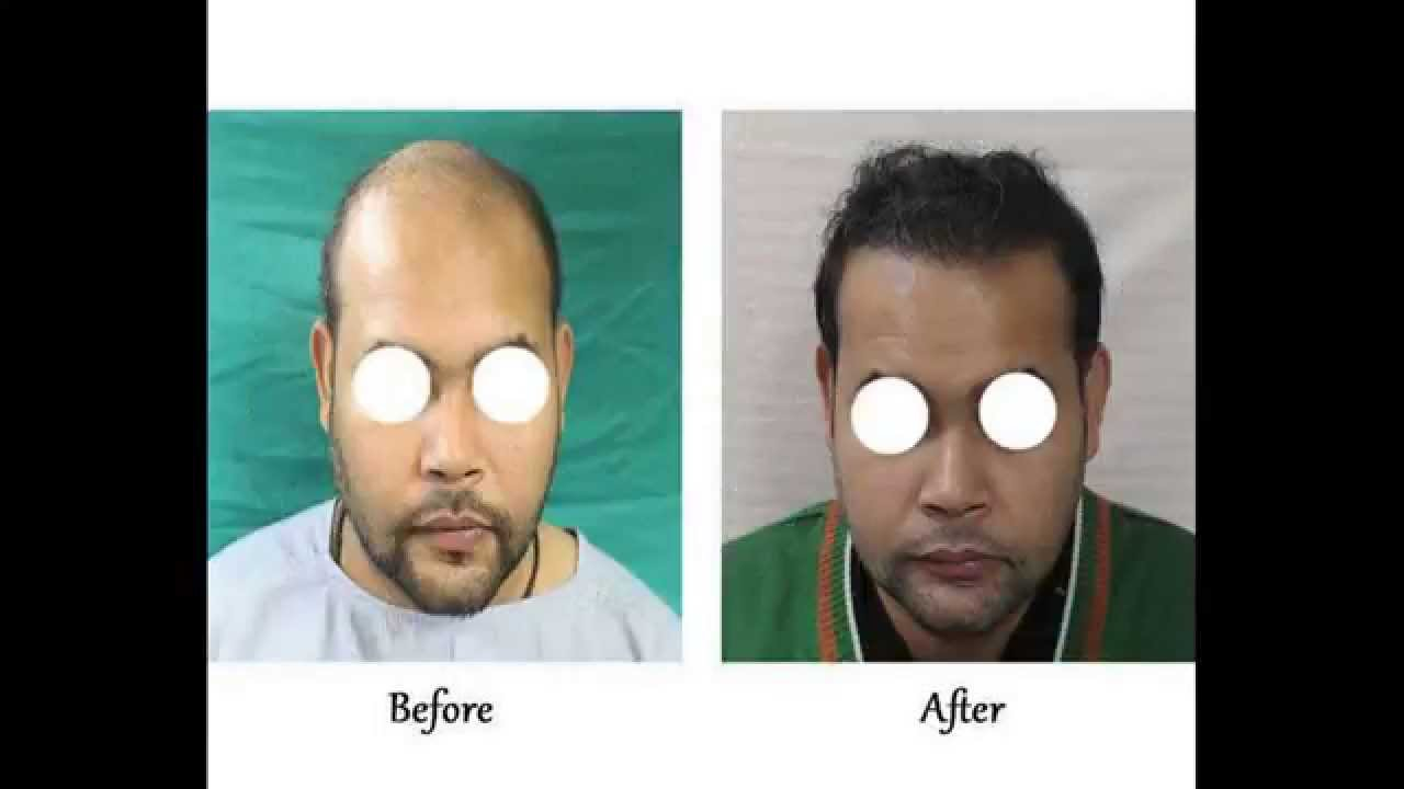 Best Hair Transplant In Delhi Before And After Pictures Youtube