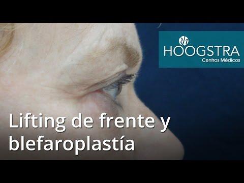 Lifting de frente y blefaroplastía (17012)