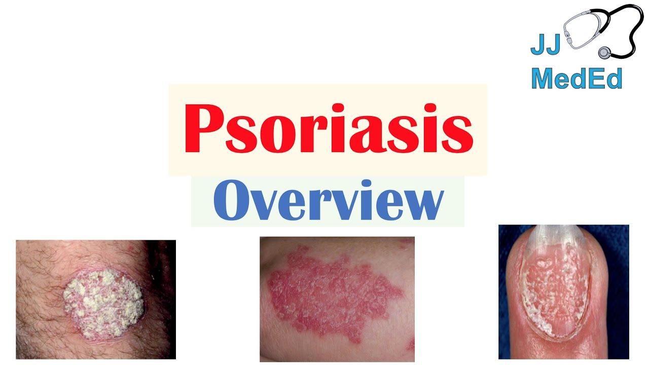 psoriasis disease video)