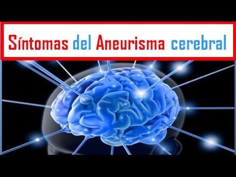 sintomas de aneurisma cerebral leve