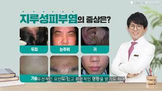 지루성피부염, 얼굴과 두피에 지루성피부염이 심한데, 치…