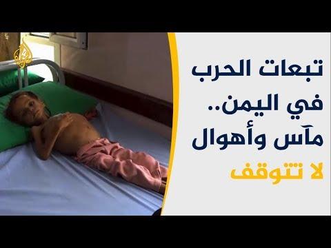 أنقذوا الأطفال: 85 ألف طفل ربما قضوا باليمن جوعا  - نشر قبل 2 ساعة