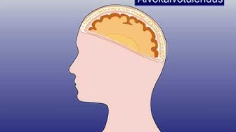 Lastenlääkäri: Animaatio - Aivokalvon tulehdus