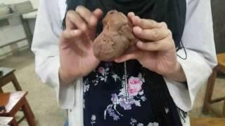 Cerebellum with brain stem ( mid brain , pons and medulla oblongata )