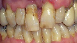 Hot girl bad teeth