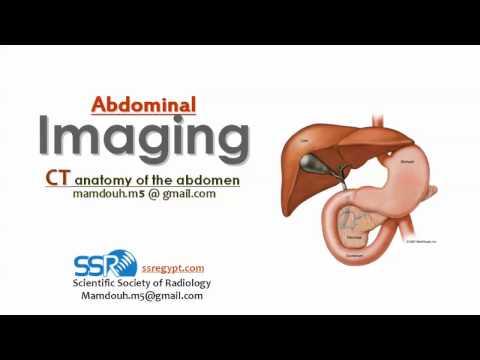 CT Radiological Abdominal anatomy ( التشريح الاشعاعي لمقطعية البطن ) - Prof. Dr. Mamdouh Mahfouz