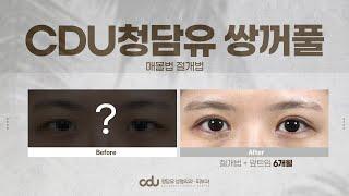 CDU청담유 쌍꺼풀 수술 전후_매몰or절개